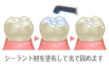 虫歯を予防