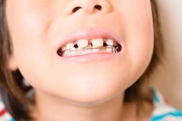 顎や顔面の正しい成長発育