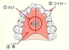 床矯正装置で小さな顎を拡げます。