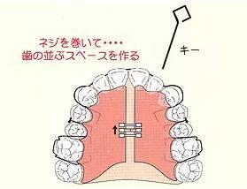 歯の並ぶスペースを作ります