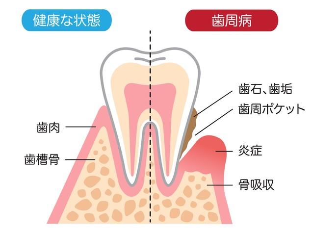 歯石を除去することが大切